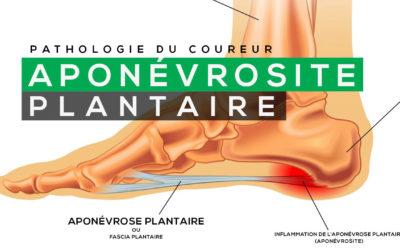 COMMENT TRAITER L'APONÉVROSITE PLANTAIRE ?